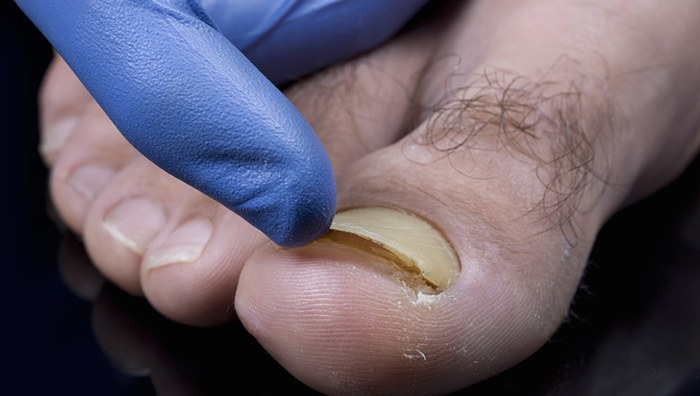 Picture of toenail infection