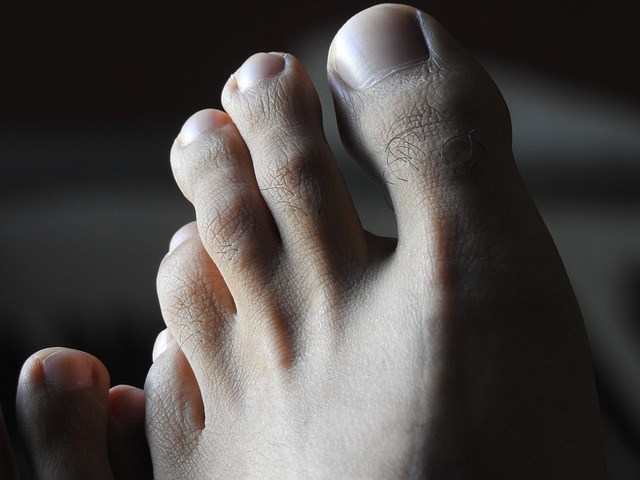 thick toenail treatment
